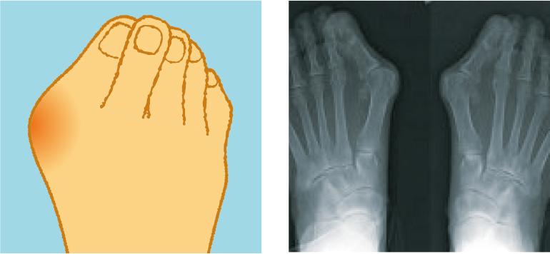 専門医に聞きました 気になる足の病気