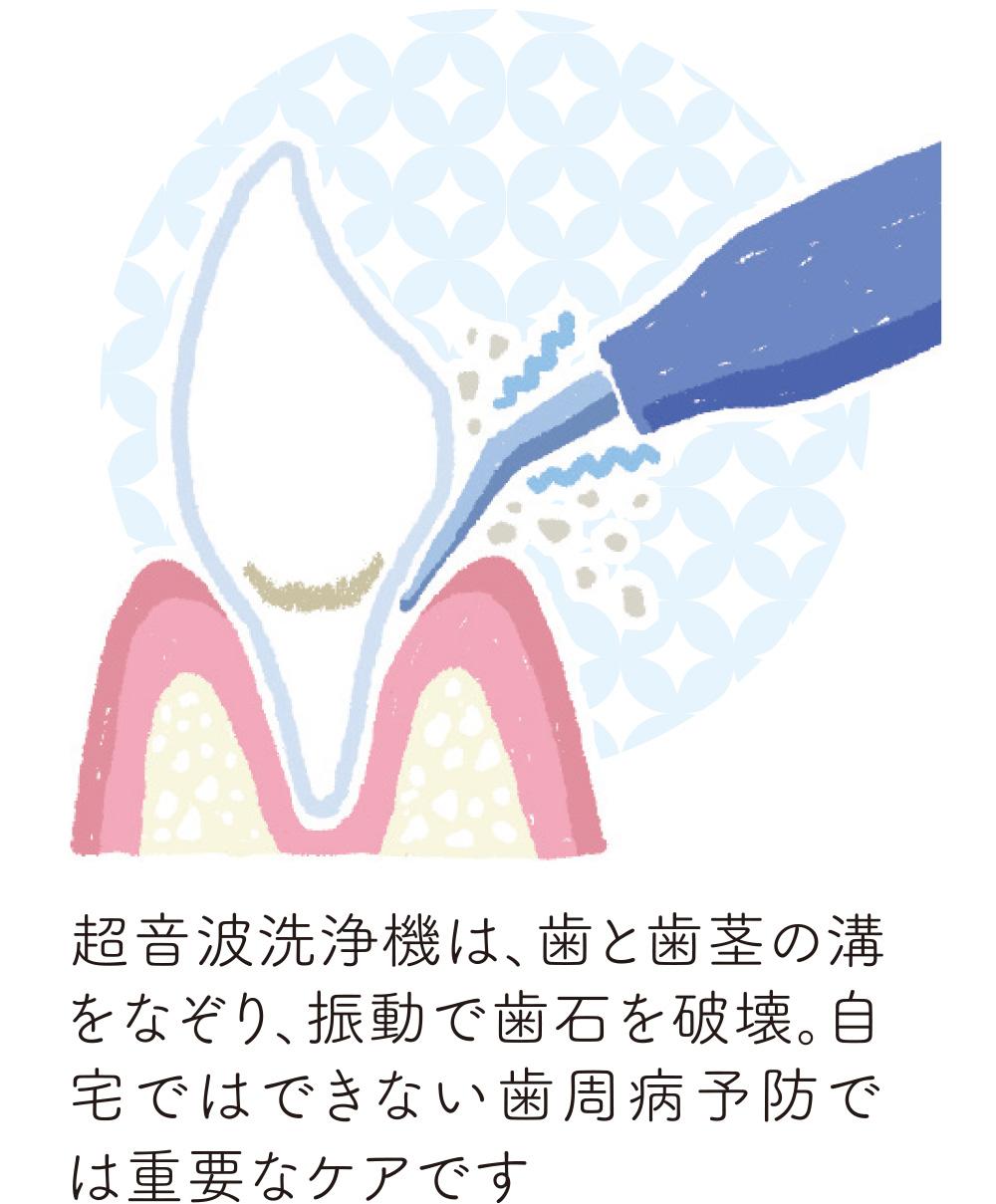 超音波洗浄機は、歯と歯茎の溝をなぞり、振動で歯石を破壊。自宅ではできない歯周病予防では重要なケアです