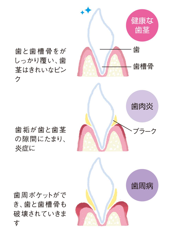 健康な歯茎、歯肉炎、歯周病